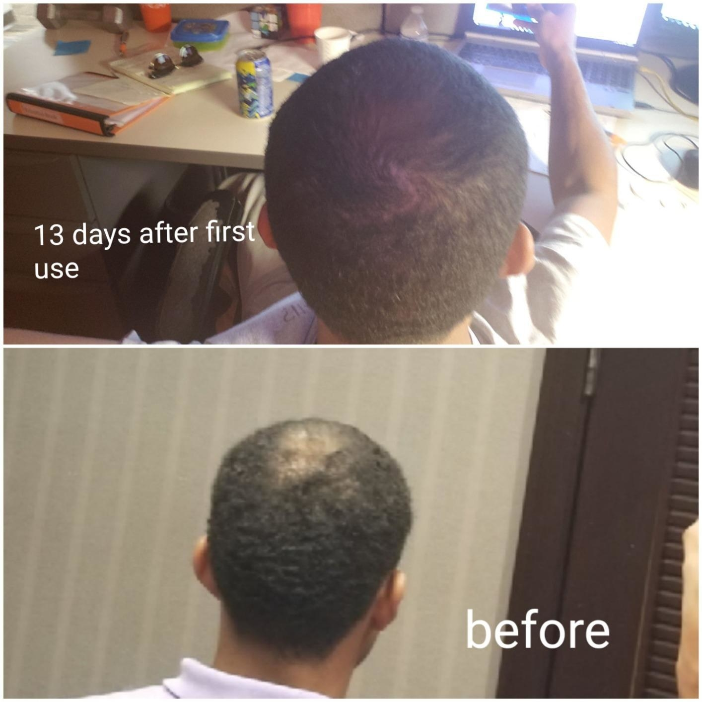 reviewer with a bald spot that says before and the same reviewer with more hair that says 13 days after first use