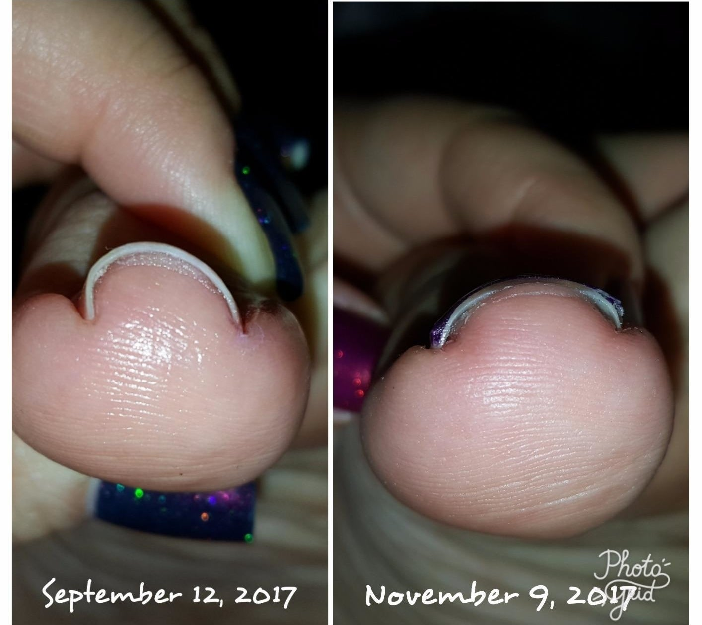 a review image of a bent nail that says september 12 2017 next to another picture of the nail looking much flatter that says november 9 2017