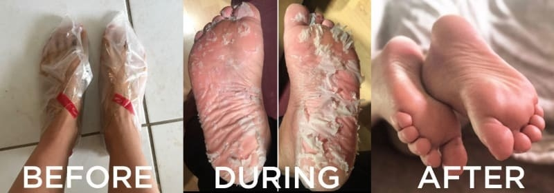 before: feet in plastic socks during: peeling feet after: smooth feet