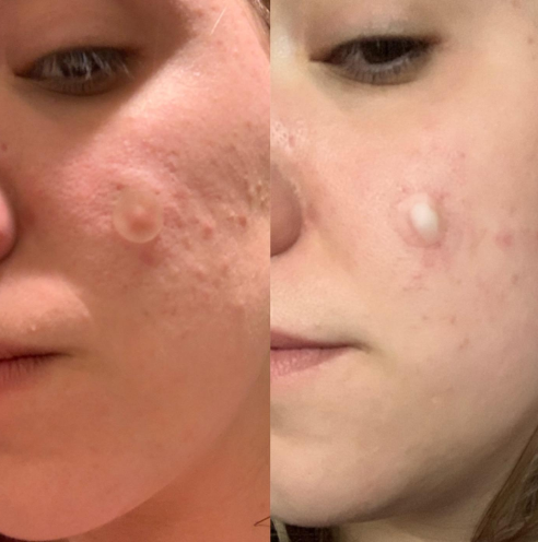 A before and after showing puss drawn out from the pimple spot where a patch was placed
