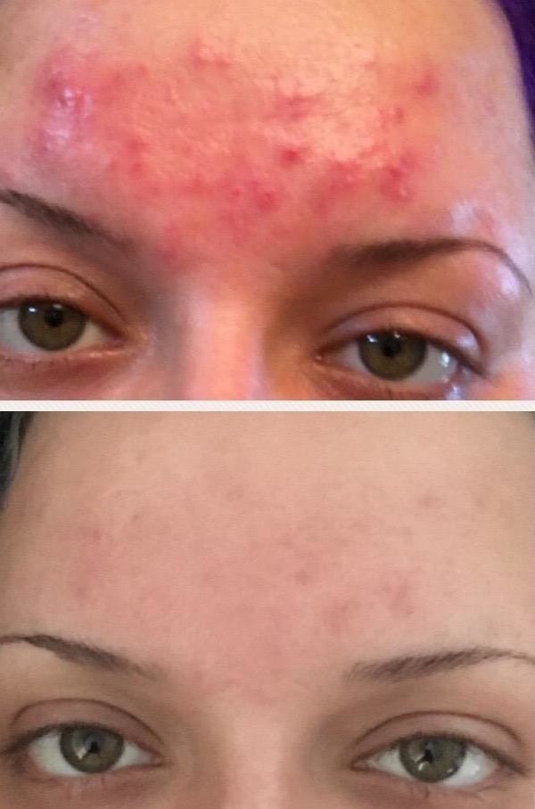 on the top a reviewer's forehead with bright red acne, on the bottom the same forehead with almost no breakouts