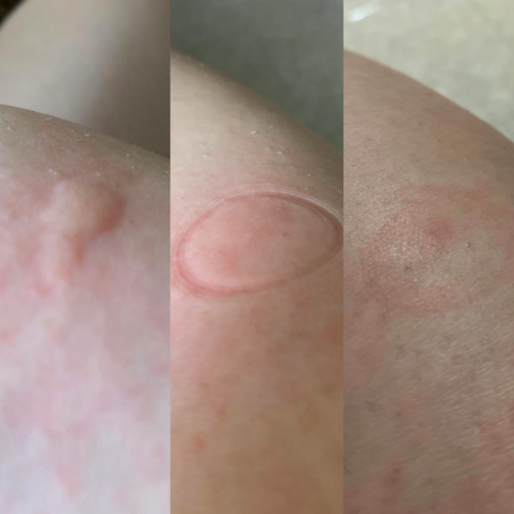 Three images from a Reviewer showing a once-swollen bite become not swollen anymore