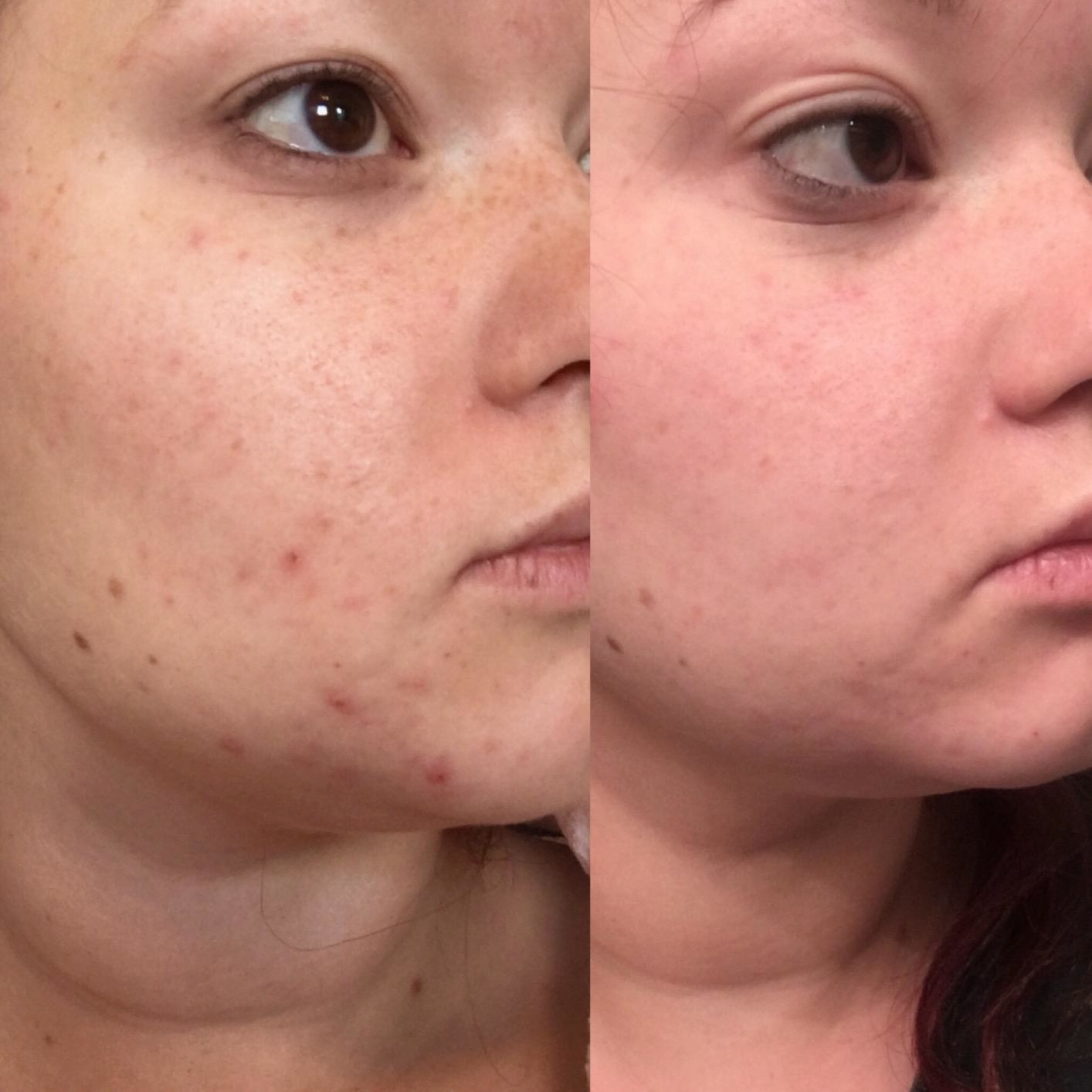 on the left reviewer with a few breakouts, on the right the same reviewer with no breakouts