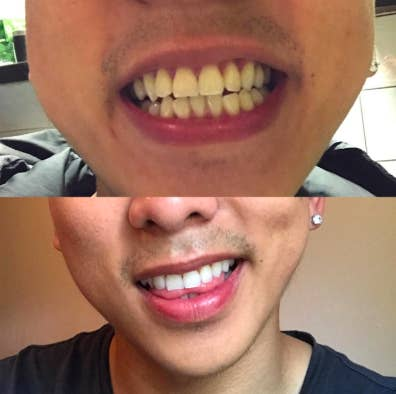 a before and after photo of dingy teeth and white teeth