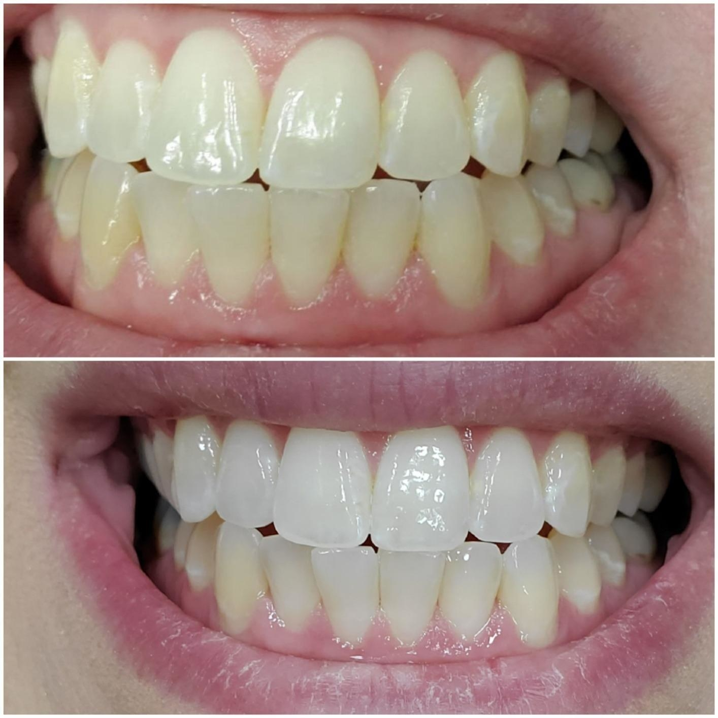 A reviewer's teeth in two photos: top, yellower, bottom whiter