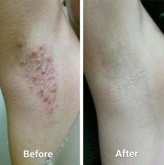 Reviewer's before and after of bumpy armpit with razor burn, and then smooth armpit