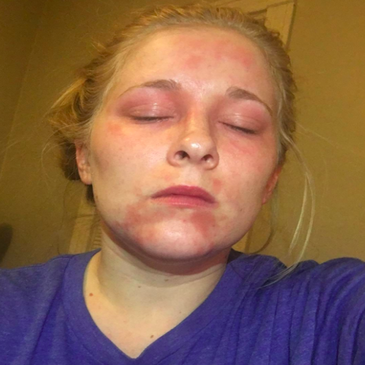 Reviewer's before picture with eczema