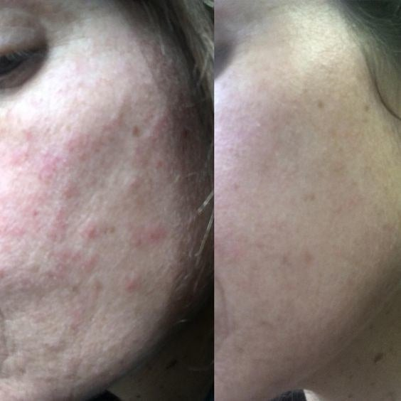 Reviewer's before-and-after of cheek with acne, and then totally clear