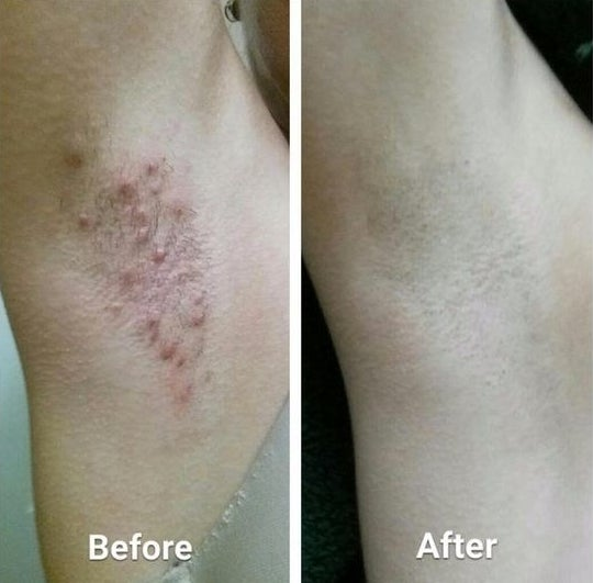 Reviewer's before-and-after picture with armpit razor burn and the other smooth and cleanly shaven