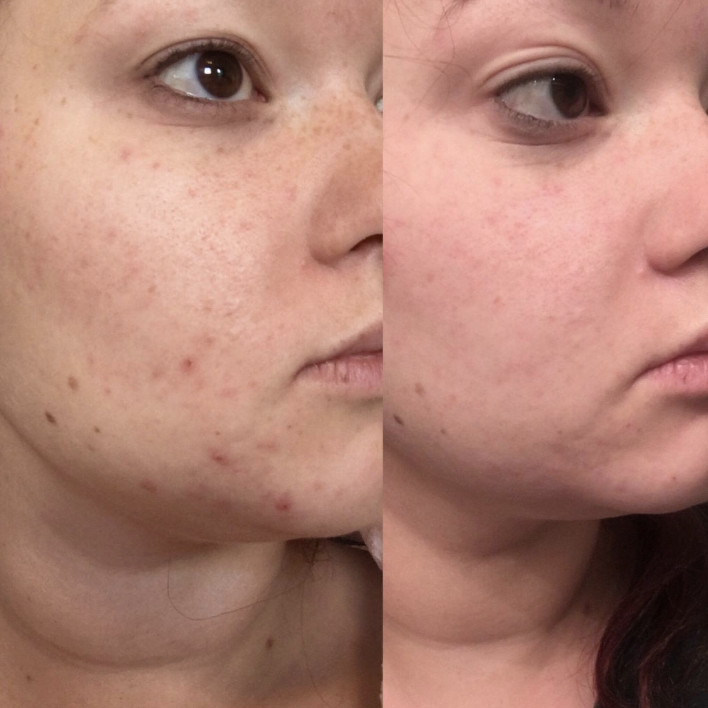 Left side shows reviewer with pimples, redness, and acne scars while the right side shows the same person with zero redness, only one or two scars, and no pimples