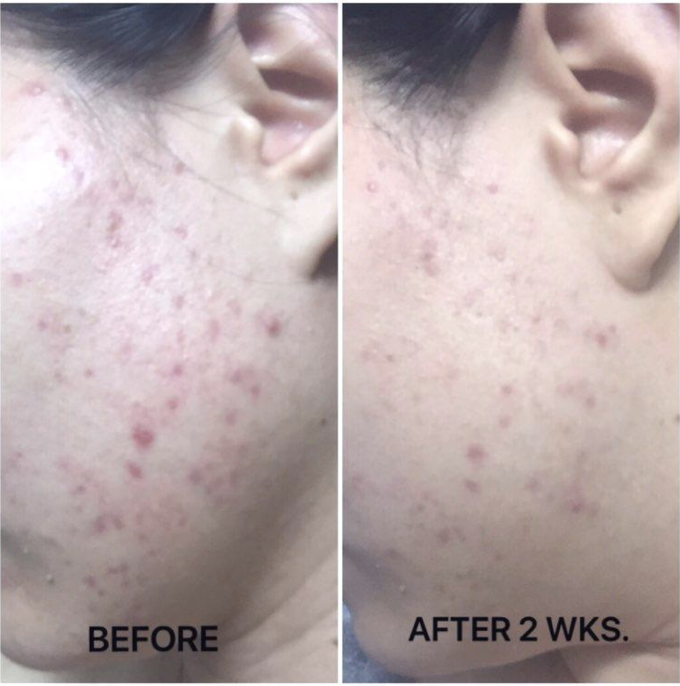 Left side shows reviewer's cheek with large red acne blemishes and right side shows same reviewer with less pimples and significantly less redness