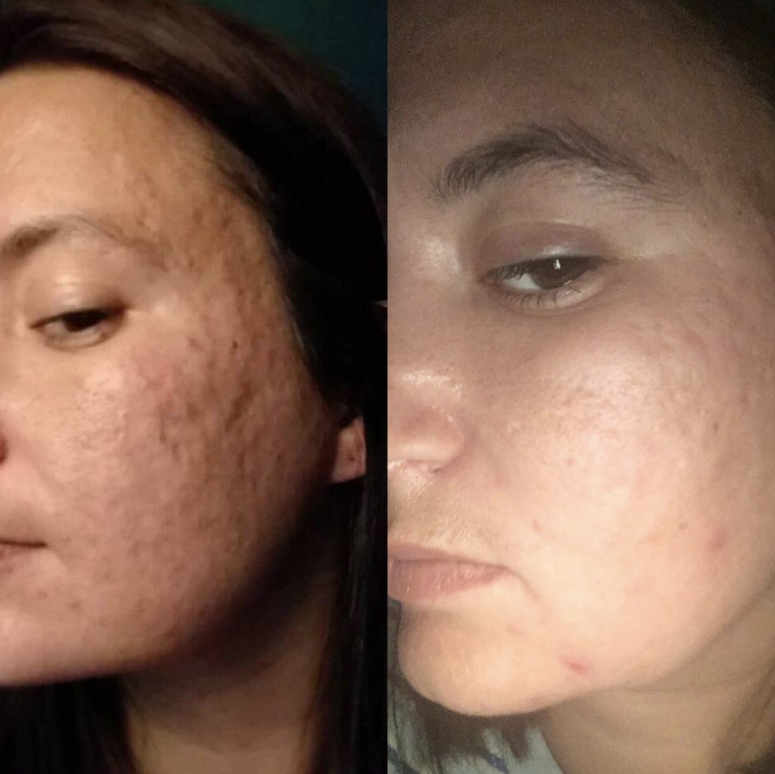 Left side shows reviewer with lots of acne pitting and redness while the right side shows the same reviewer with much less pitting and only two red spots