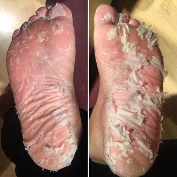 reviewer's peeling feet