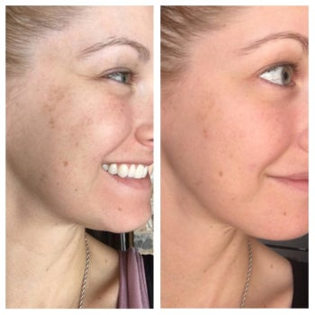 reviewer's before-and-after of having a smoother and more even complexion after using the serum