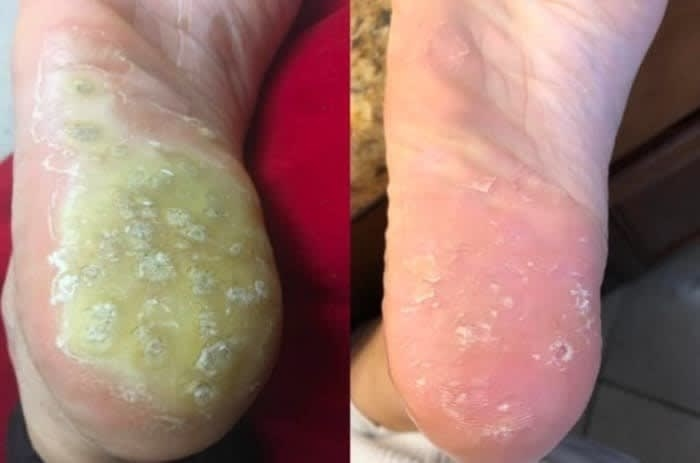 On the left, the bottom of a reviewer's foot mostly covered in warts, and on the right, the same reviewer's foot now mostly cleared of warts