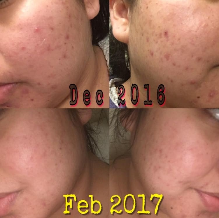 On the top, a reviewer's face with acne in December 2016, and on the bottom, the same reviewer with most of their acne going down in February 2017
