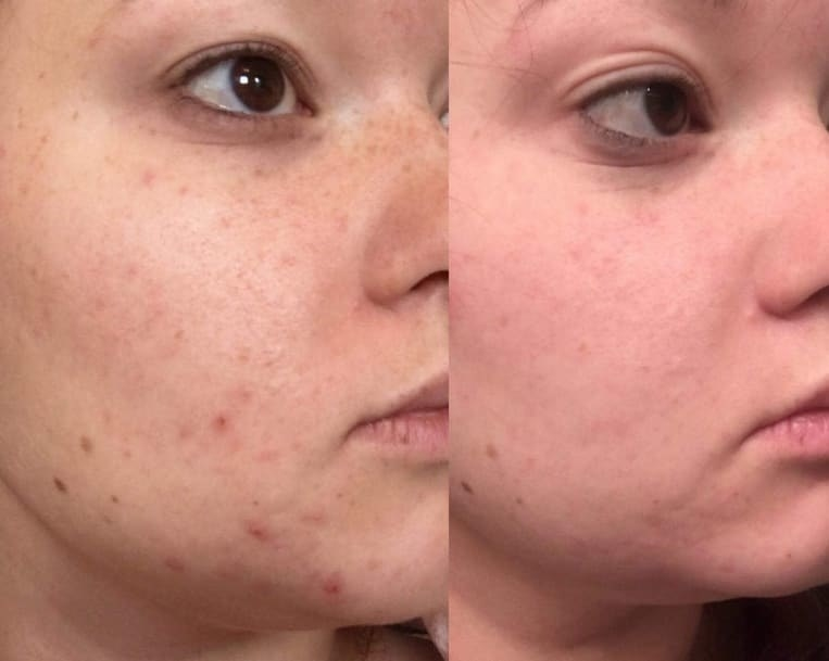 On the left, a reviewer with some acne on their face, and on the right, the same reviewer's face with most of the acne cleared up