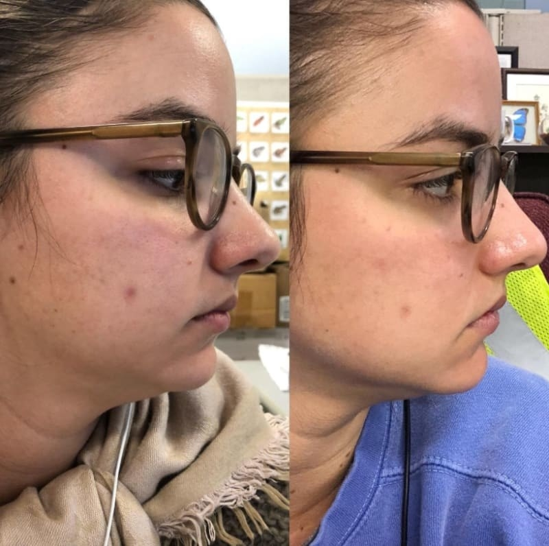 On the left, a reviewer showing thy have a zit on their cheek, and on the right, the same reviewer's zit has mostly gone down, and their skin looks smoother and brighter