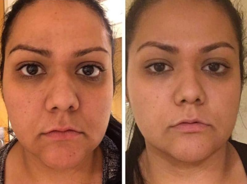 On the left, a reviewer showing they have bags under their eyes, and on the right, the same reviewer showing their bags are gone after using the repair cream