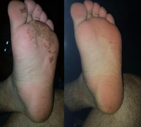 On the left, punched-out pits on the bottom of a reviewer's foot from pitted keratolysis, and on the right, the same reviewer's foot with most of the pits mostly gone after using the wash
