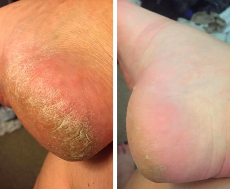 On the left, a reviewer's heel looking dry and cracked, and on the right, the same reviewer's heel looking much less dry and cracked and more smooth