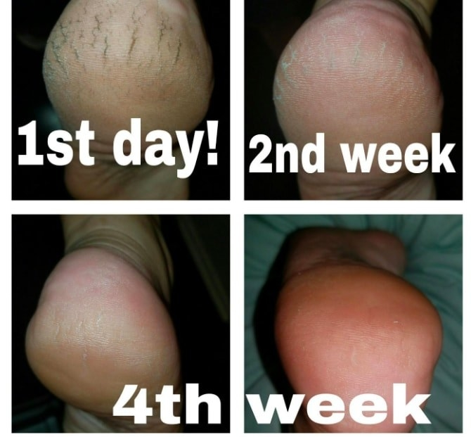 A reviewer showing the progression of their heel looking dry and cracked on the first day they started using the cream, to being much softer and smooth by the fourth week