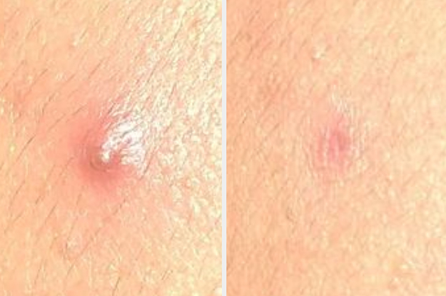 31 Ways To Help Get Rid Of A Pimple In A Hurry