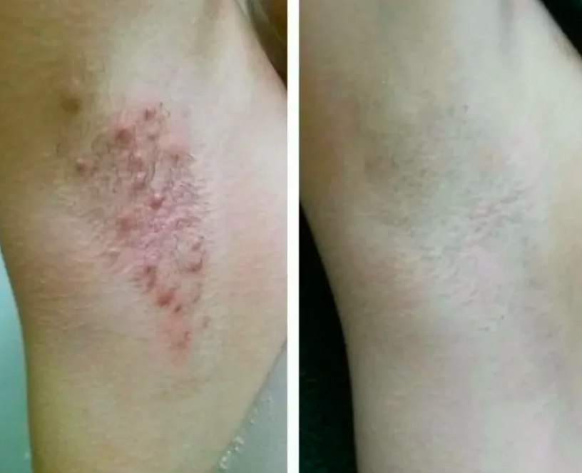 reviewer before pic of red bumpy arm pit, then after of clear armpit