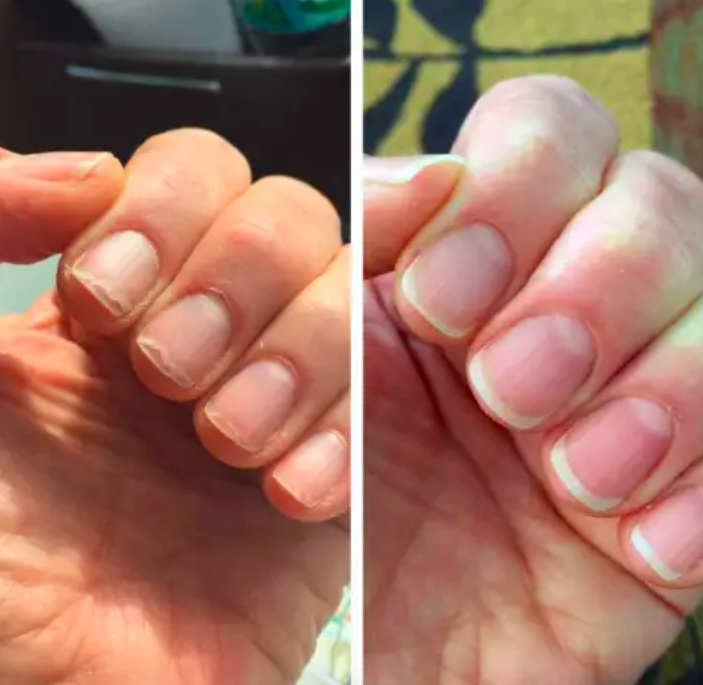 Reviewer with brittle, broken nails before and healthy, long nails and nail beds after use