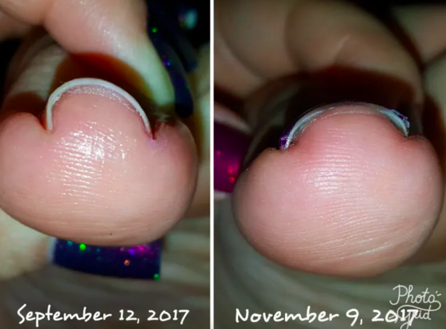 Reviewer's toenail in September with deep U curve and the toenail in November after using the brace in a more natural, less dramatic curve