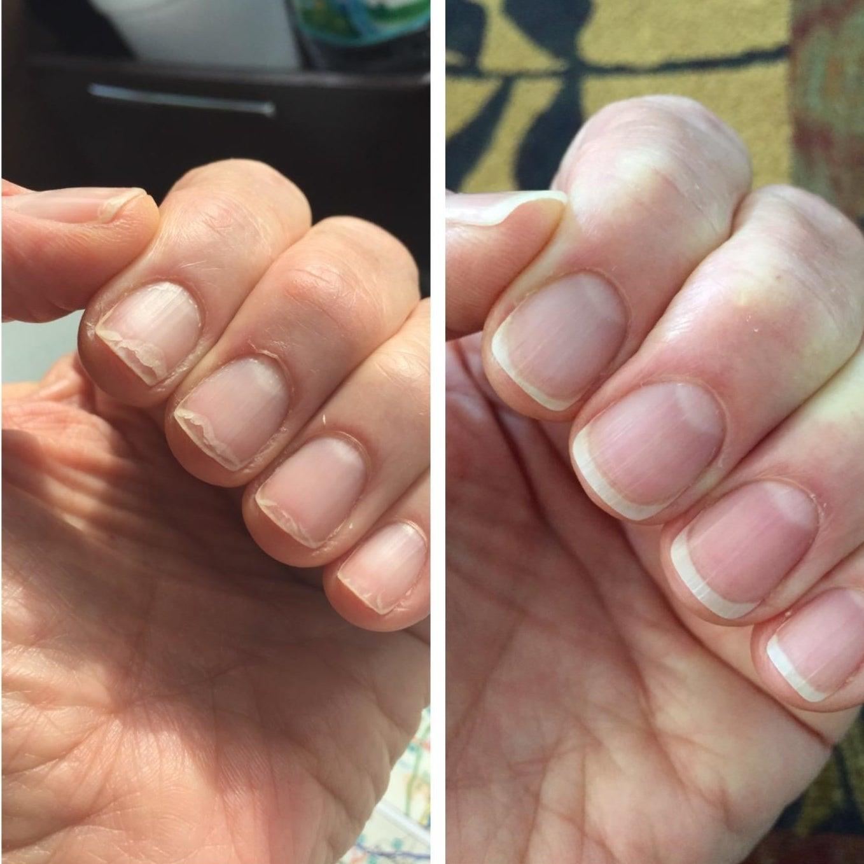 left: peeling nails right: no more peeling