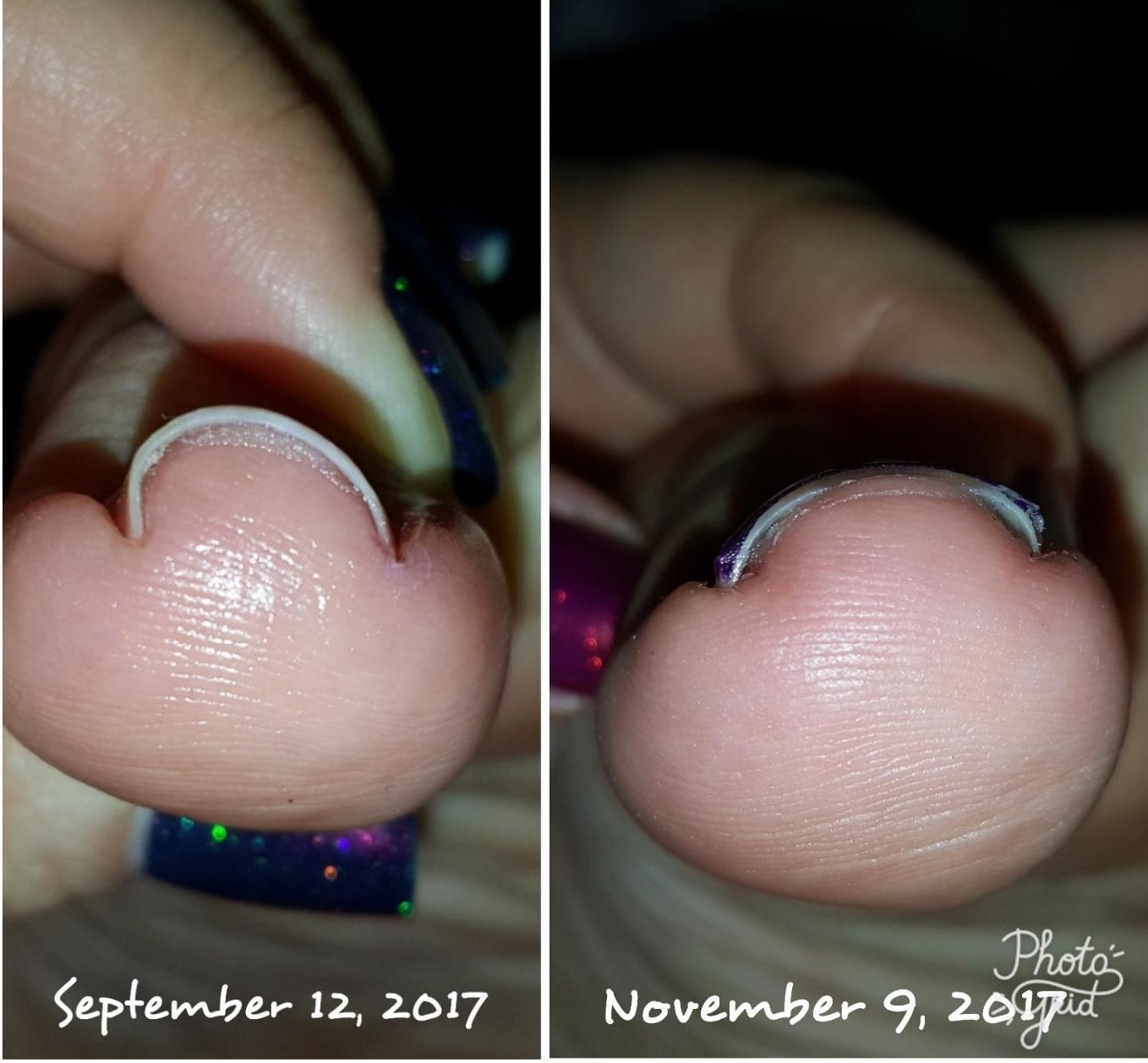 left: bent, u-shaped nail in september right: normal looking nail by november
