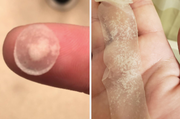 14 Acne Spot Treatments You Can Get On Amazon That People Actually Swear By