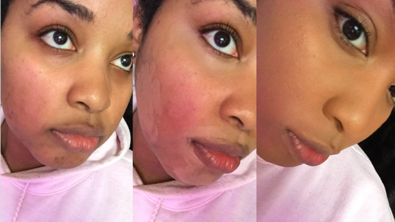 Reviewer's before and after picture to show red cheeks and then totally clear-looking cheeks