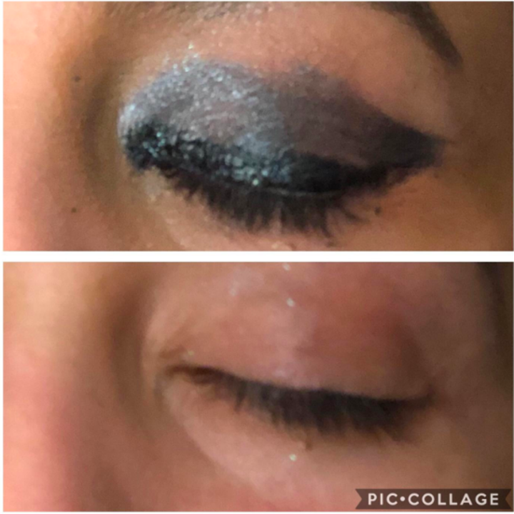 Above: A reviewer's eyelid fully made up with glitter shadow, liner, and mascara. Below, the same eye with all the makeup removed except for a few remaining traces of glitter