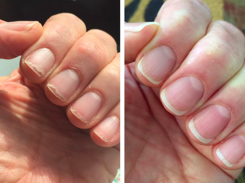On the left, a reviewer's nails looking short and broken, and on the right, the same reviewer's nails now looking longer and healthier