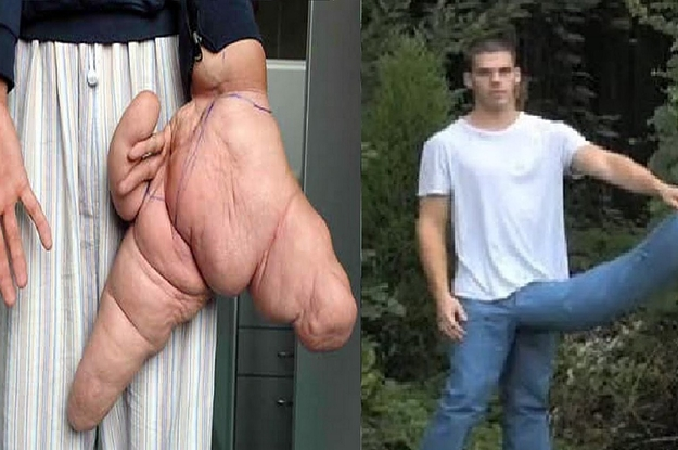 Fashion Trends : Top 10 Amazing People Have The Biggest Body Parts In The World