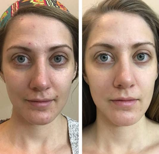 19 Skincare Products With Dramatic Before And After Photos