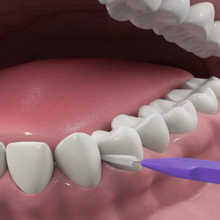 A 3-D model of teeth showing how the DenTek brush can clean between teeth