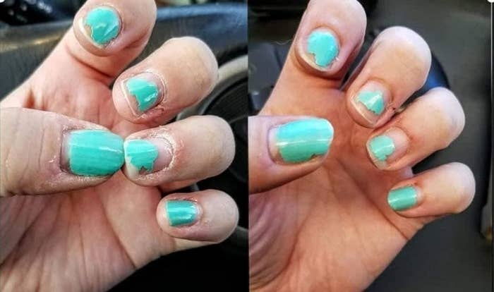 A split image of a hand with dry, cracked cuticles on the left, and the same hand looking healthy and hydrated on the right