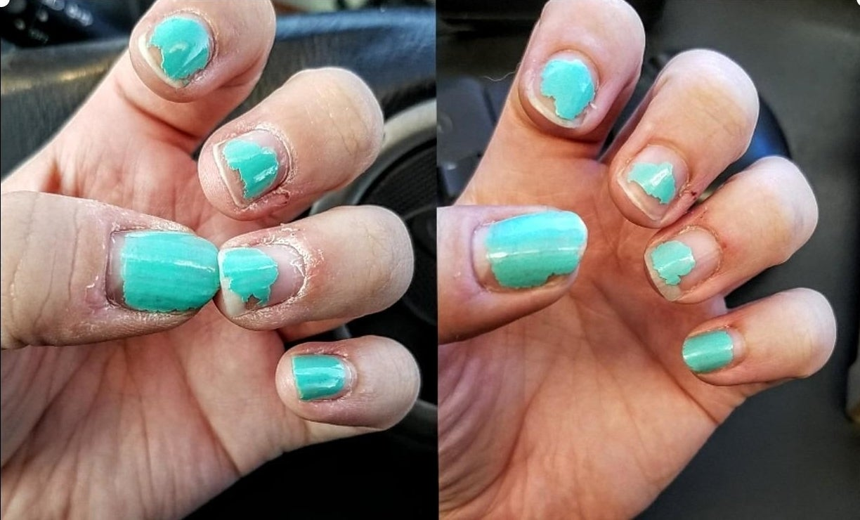 Before and after showing the cream moisturized dry skin and cuticles on reviewer's hand