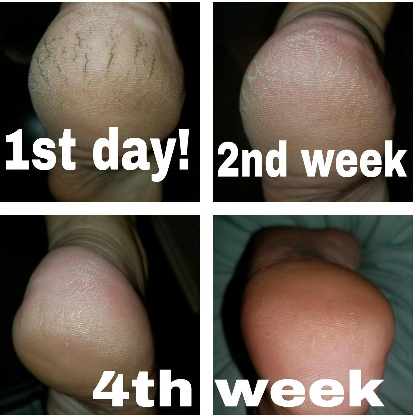 Progression photos showing a reviewer's extremely dry and cracked heals becoming moisturized
