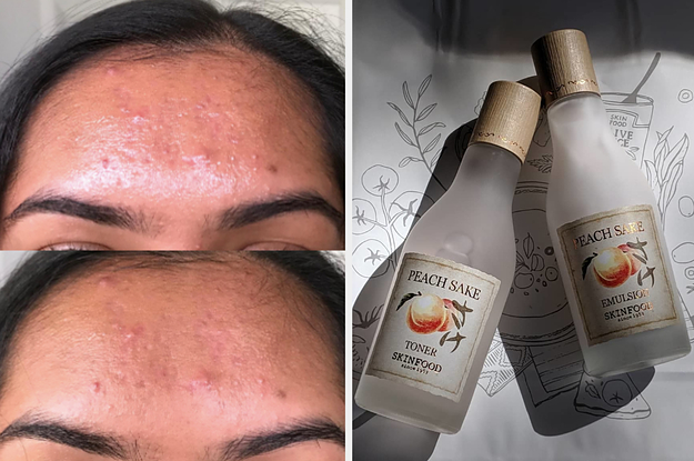 So Long Greasy T Zone People With Oily Skin Swear By These Products