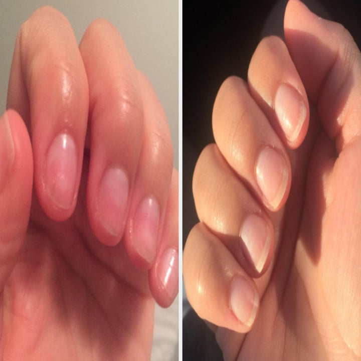 reviewer image showing their nails before and after using the cream and how much longer and stronger they are