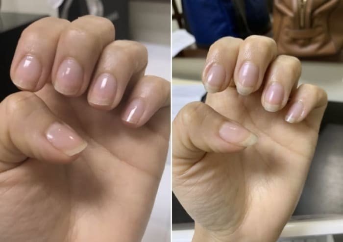 Before/after photo of a reviewer's nails. The after image shows much longer, healthy-looking nails from using the cream