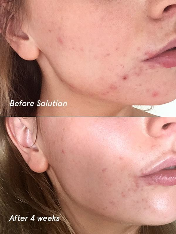 "On the top, text ""before solution"" and a model with acne on their cheeks and chin. On the bottom, text ""after 4 weeks"" and the same model with the pimples largely faded and just some flat spots remaining"