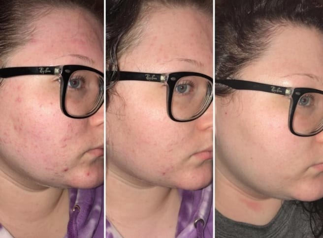 Progression pics of a reviewer using the rosehip oil to reduce breakouts and redness.