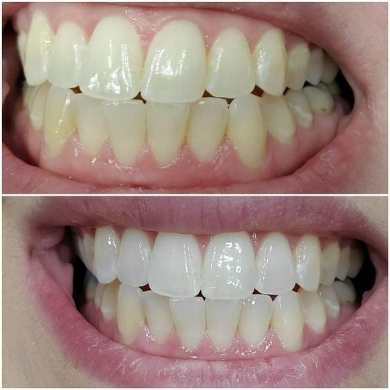 A customer's before and after pictures side by side; in the before their teeth are yellowed and in the after they are noticeably whiter