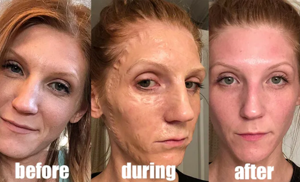 Reviewer showing before, during, and after shots where during their skin looks pulled taught and wrinkly. It looks dewy, clean, and bright after use.