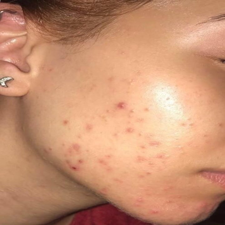 A reviewer's active break out before using the rosehip oil